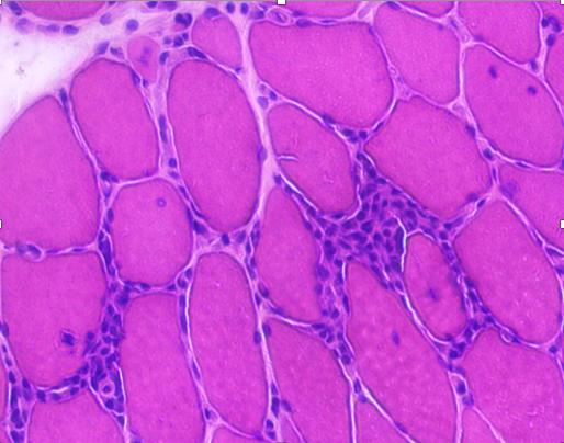 Infiltrat inflammatoire dans un muscle de patient de myosite à inclusion