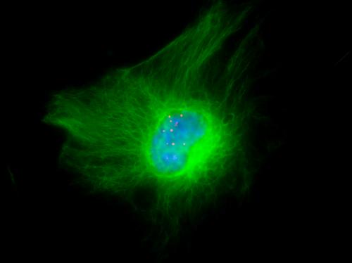 Accumulation des foci d'ARN toxique (rouge), dans le noyau (bleu) d'un astrocyte (vert) d'une souris DMSXL, modèle transgénique de la dystrophie myotonique de type 1
