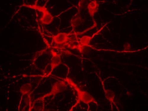 Culture de neurones primaires, utilisés pour l'étude des mécanismes moléculaires et cellulaires de l'atteinte neurologique de la dystrophie myotonique type 1