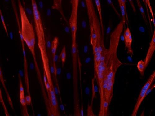 Cellules musculaires en différentiation. En rouge marquage MF20 et en bleu marquage des noyaux   ©DHIAB