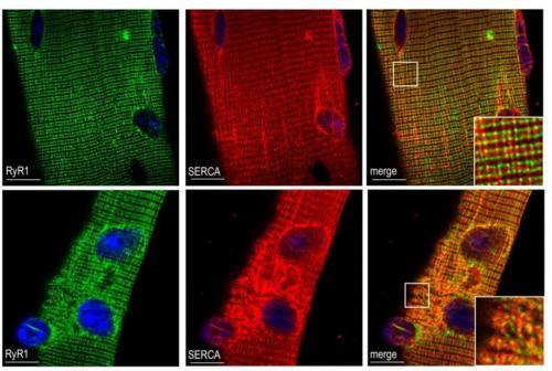 Fibres musculaires marquage RyR1 et SERCA  ©France Piétri-Rouxel