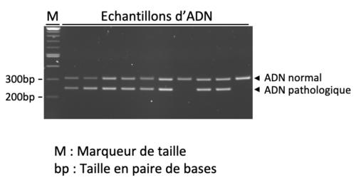 Résultat de la migration d'ADN sur gel d'électrophorèse