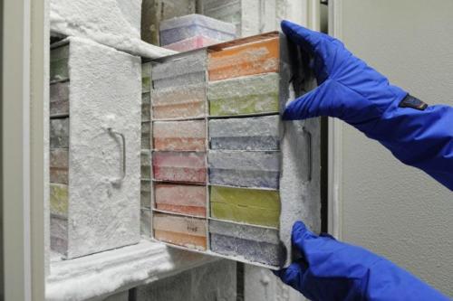 Stockage dans des congélateurs -80° : conservation de biopsies, sérum, ADN et ARN